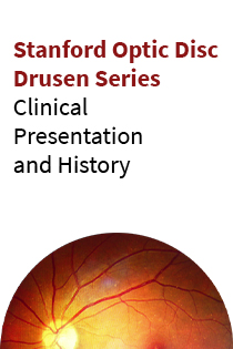 Stanford Optic Disc Drusen: Clinical Presentation and History Banner