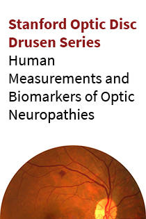Stanford Optic Disc Drusen: Human Measurements and Biomarkers of Optic Neuropathies Banner